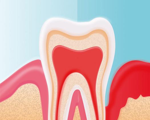 Почему болит десна под зубом?