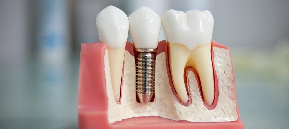 Этапы имплантации зуба
