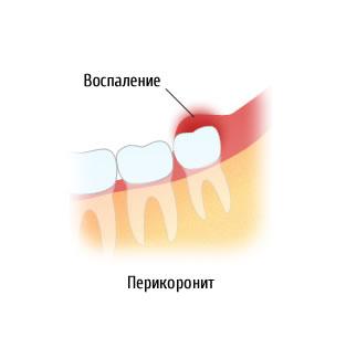 Перикоронит (перикоронарит) зуба мудрости