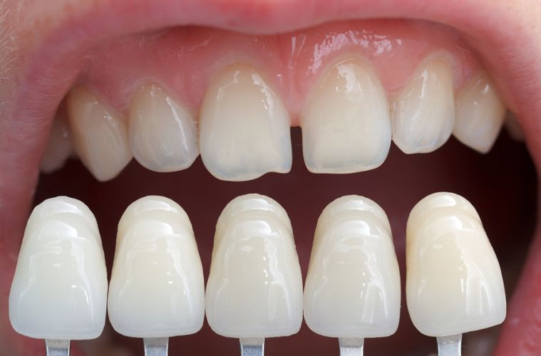 виниры или пломбы на передние зубы