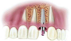 Экспресс-имплантация зубов BOI